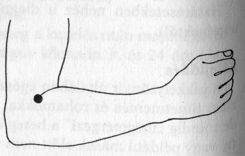 hogyan kezeljük az akupresszúrás pikkelysömör