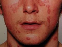 hogyan kell kezelni a seborrheás pikkelysömör arcon