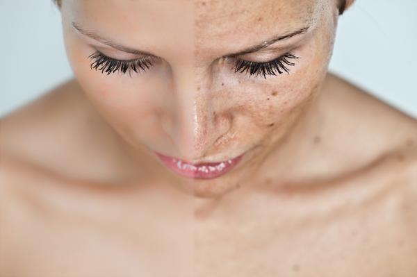 fejbőr psoriasis kezelése samponokkal