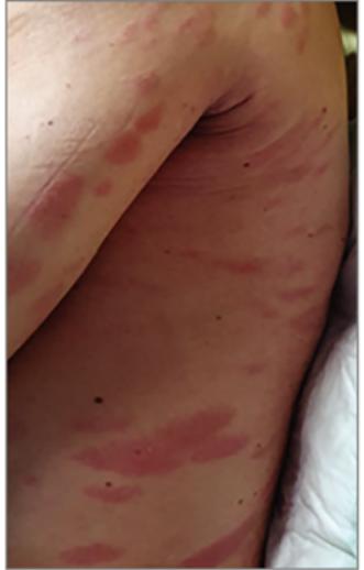 vörös foltok jelentek meg a hátán és viszkető fotók)