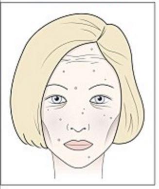 Álomfelismerés kiütés az arcon