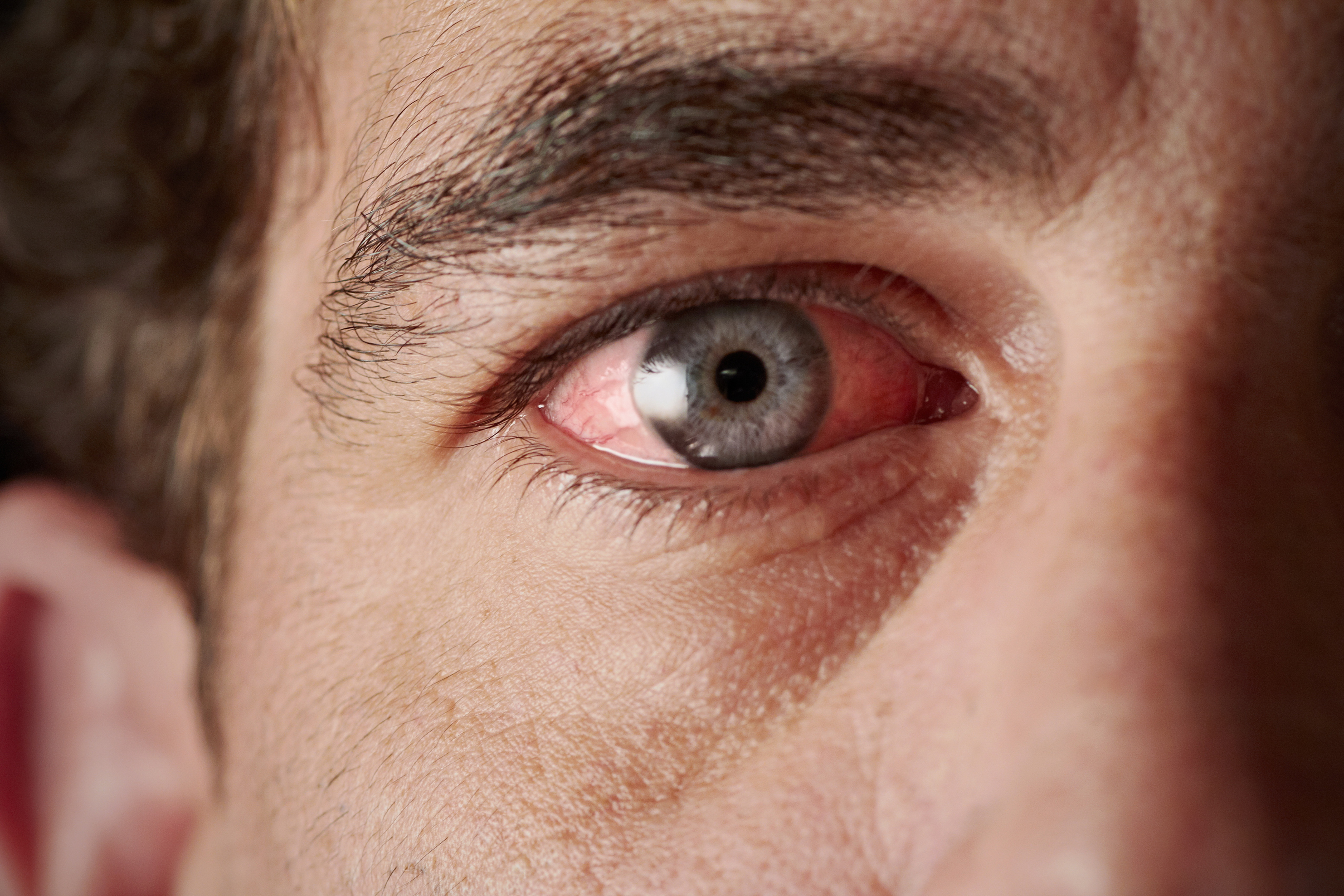 vörös pikkelyes foltok a szem alatt