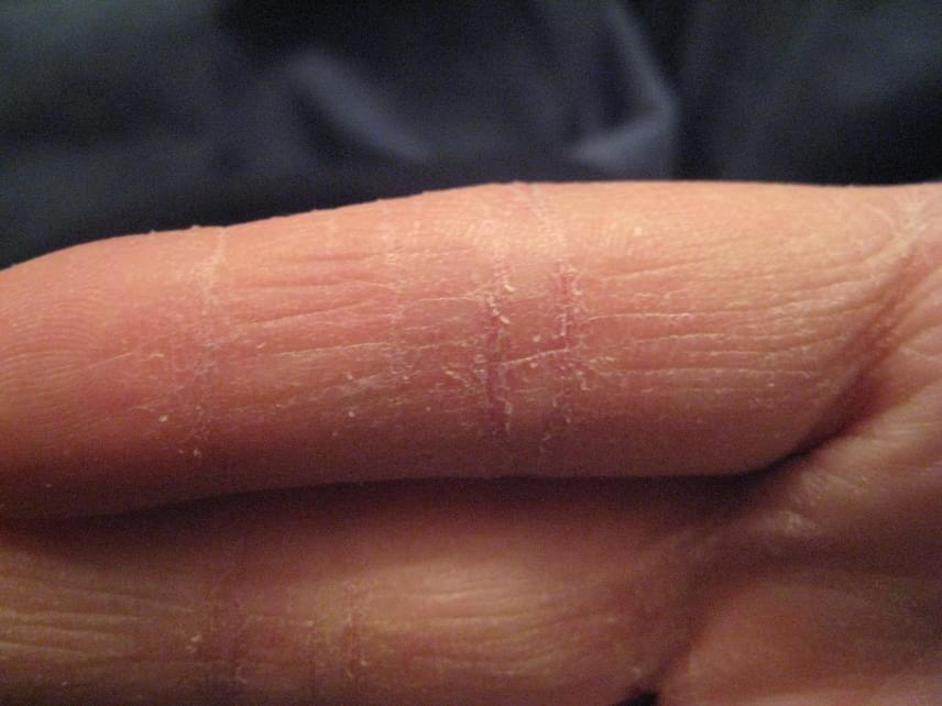 vörös száraz foltok az ujjakon)