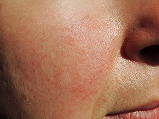 nagy vörös foltok az arcon és a testen)