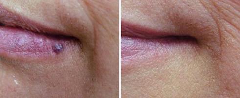 piros anyajegy az arcon, hogyan lehet eltávolítani
