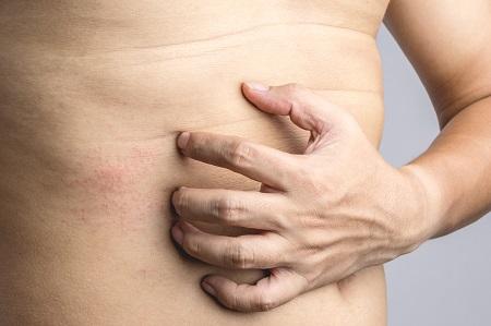 nagy vörös foltok viszketnek a gyomorban pikkelysömör kezelése suprastinnal