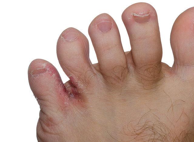 piros sárga folt a lábán