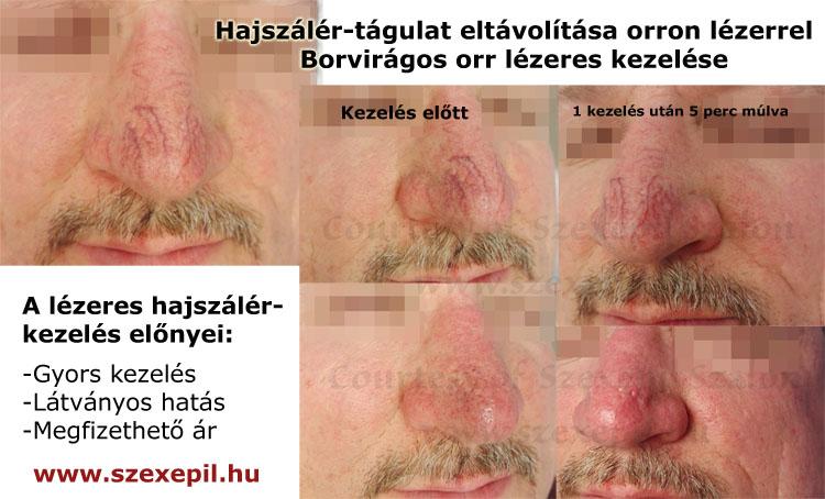 vörös folt az orron hogyan kell kezelni