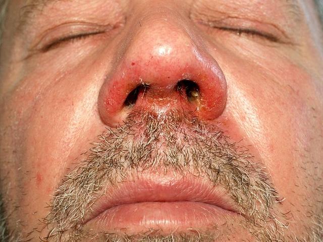 az orr közelében lévő arcon vörös foltok nőnek egyre jobban)