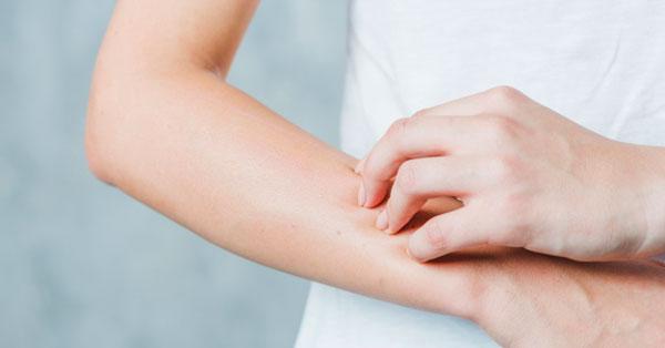 súlyos bőrviszketés pikkelysömör gyógyszerekkel