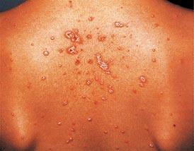 pikkelysömör arthropathic forma kezelése piros foltok az arcon mint a pír