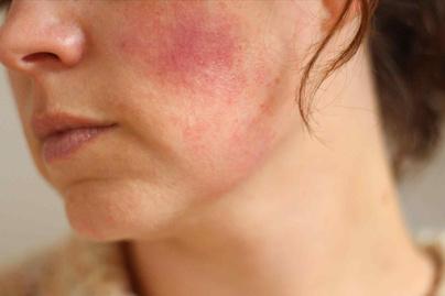 vörös foltok vannak az arcon és az arc ég)
