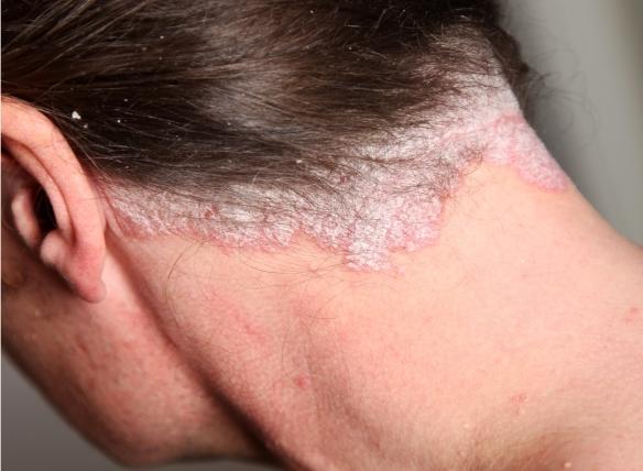 pikkelysömör az orr kezelés fotó