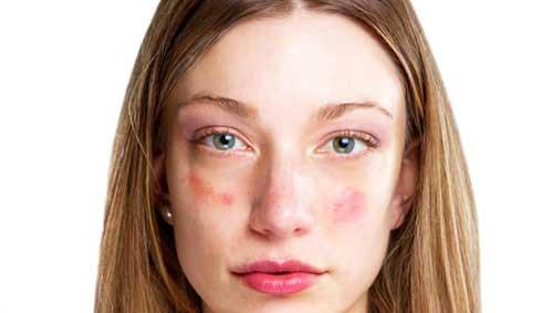 vörös foltok a nő arcán fotó okok