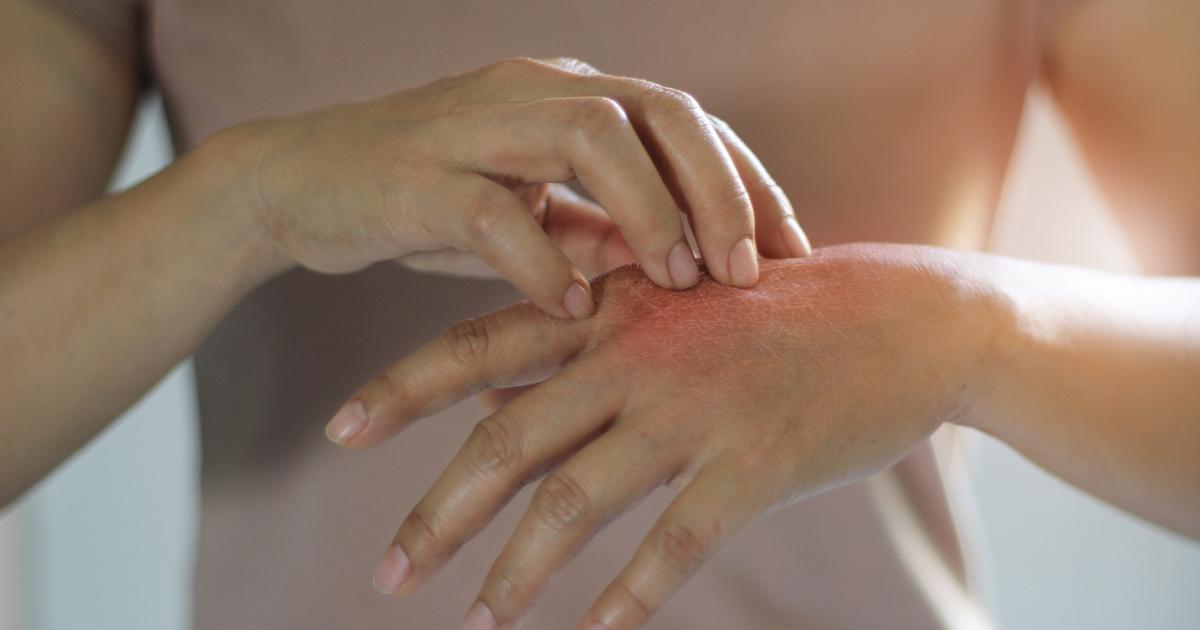 egyenletes vörös folt a kezén