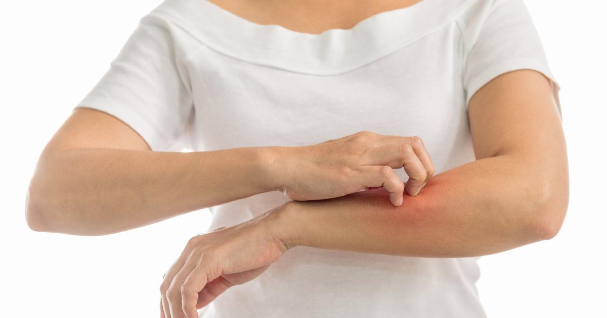 egészséges bőr pikkelysömör vörös foltok a kezeken a könyöktől a csuklóig