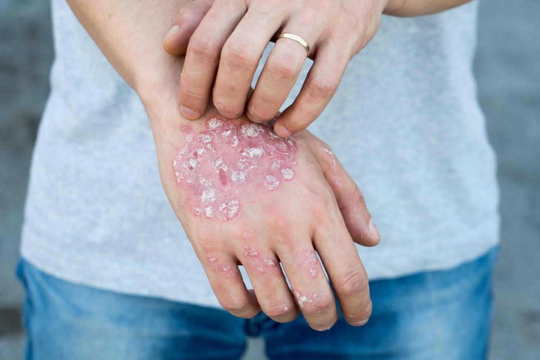 pikkelysömör az ujjak okai s kezelse)