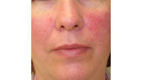 vörös foltok a rosacea arcán foltok az arcon vörös bőrbetegségek