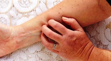 pikkelysömör kezelése fototerápia vélemények