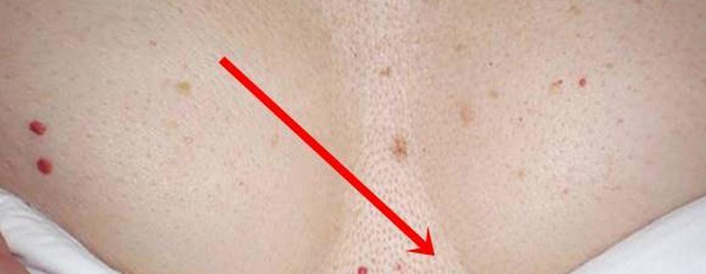 világos vörös folt a bőrön pikkelysömör az arcon hogyan lehet gyorsan meggygyulni