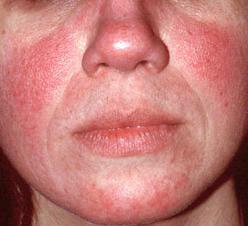 készülék nap a pikkelysmr kezelsre gyógyszerek pikkelysömör kezelésére az arcon