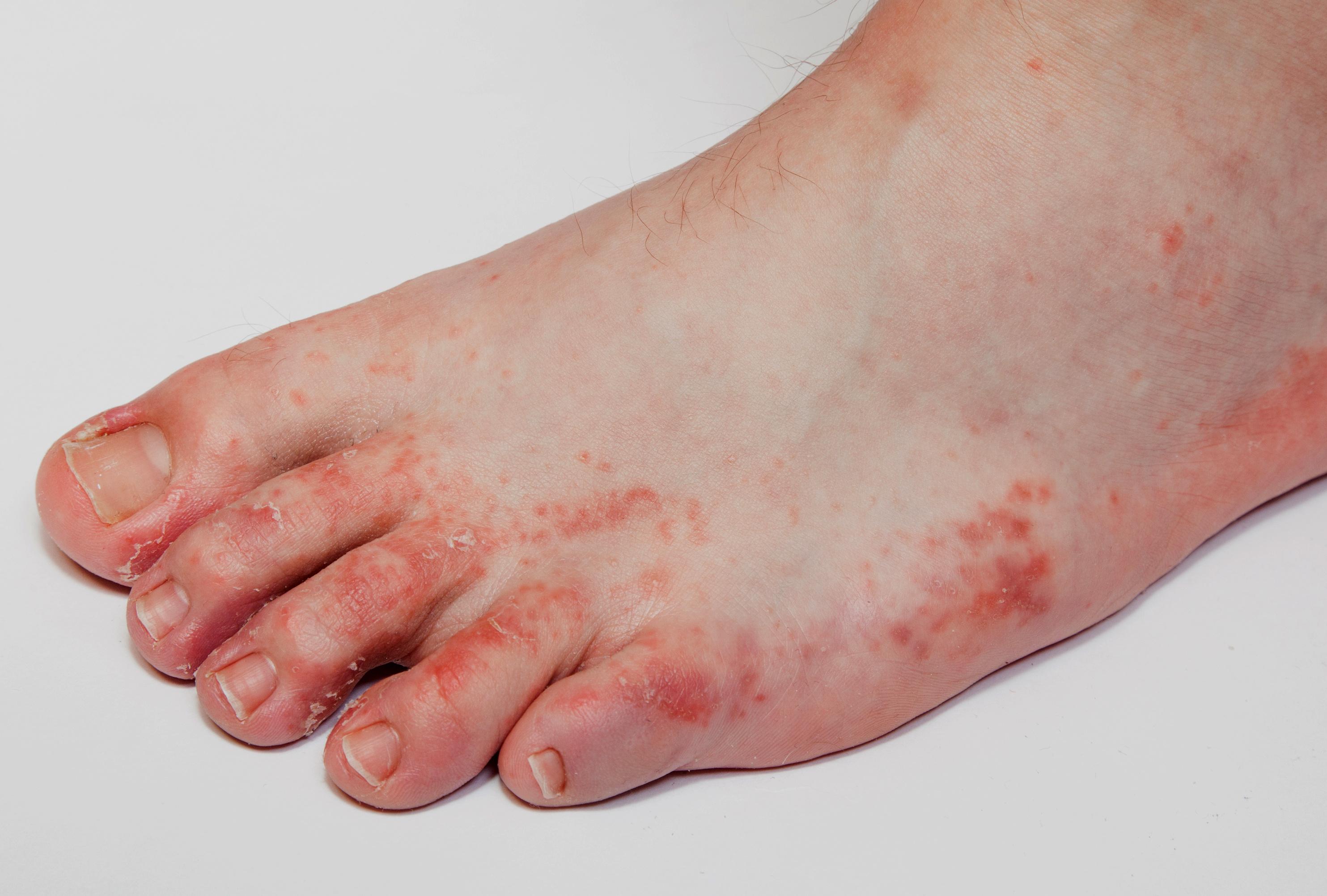 a lábán forró vörös folt viszket