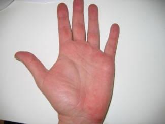 vörös folt a bal kéz tenyerén)