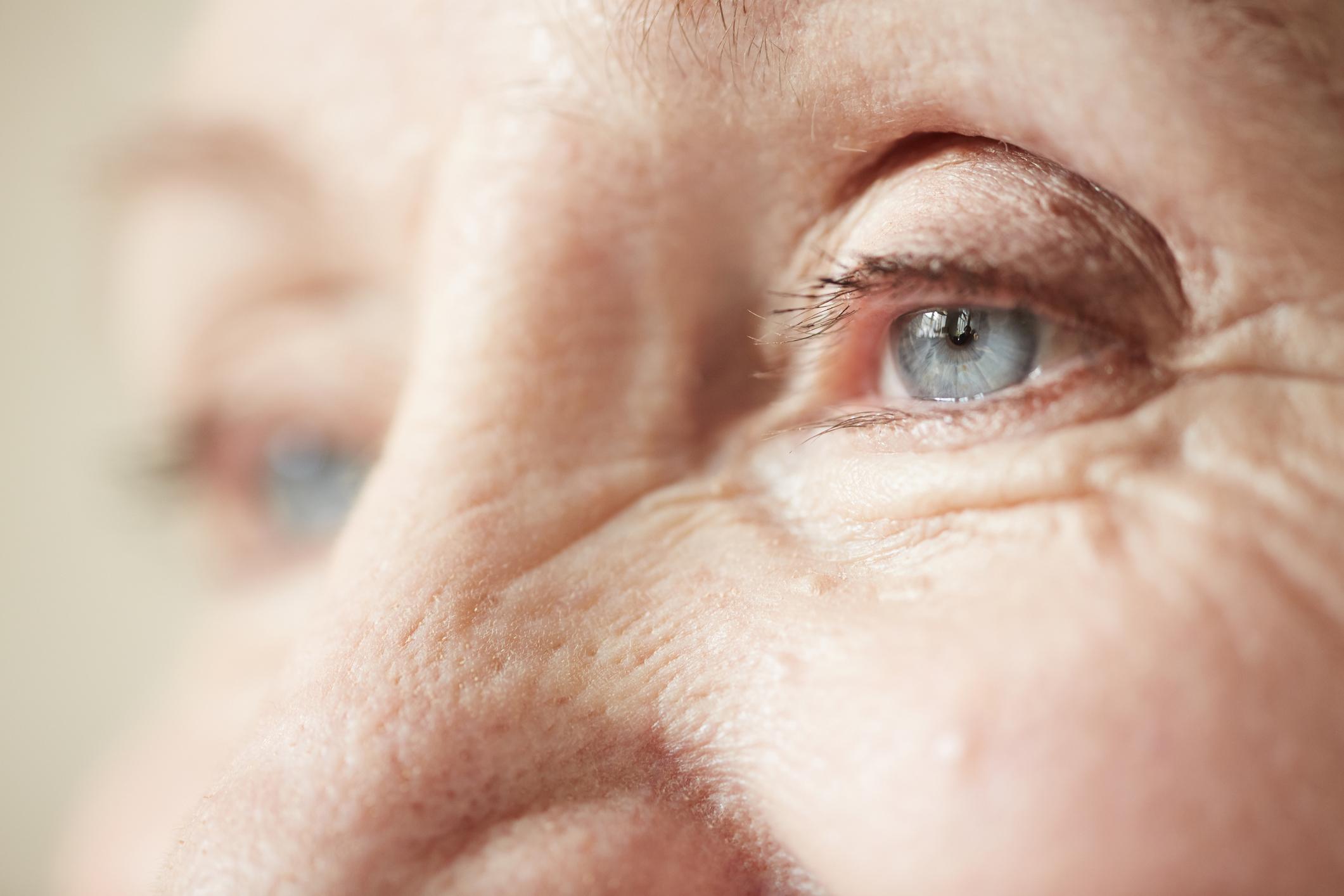 nagy vörös foltok a testen viszketőek és forrók spray skin cap for psoriasis reviews