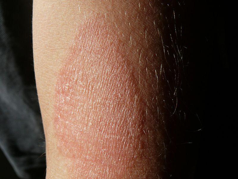 vörös foltok hólyagokkal a lábán)