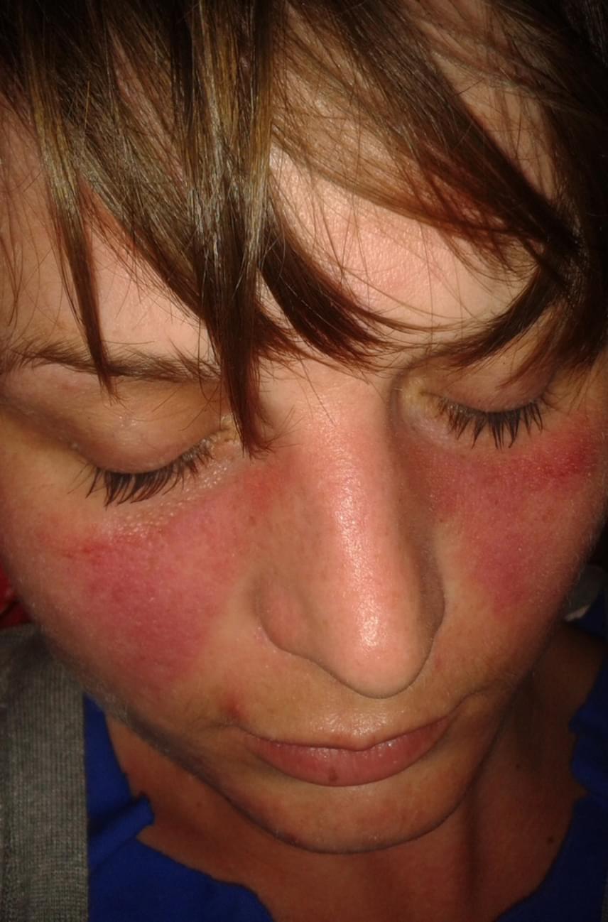 piros folt jelent meg az arcon)