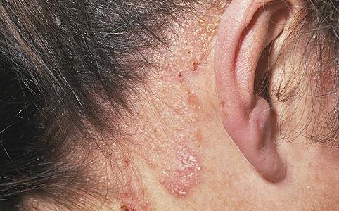 udalyanchi pikkelysömör kezelés vélemények szőrtelenítés után vörös foltok az arcon