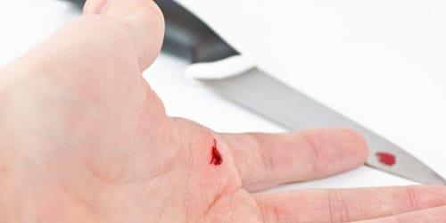 egy álomban vörös foltok vannak a kezeken menü pikkelysömör kezelésére