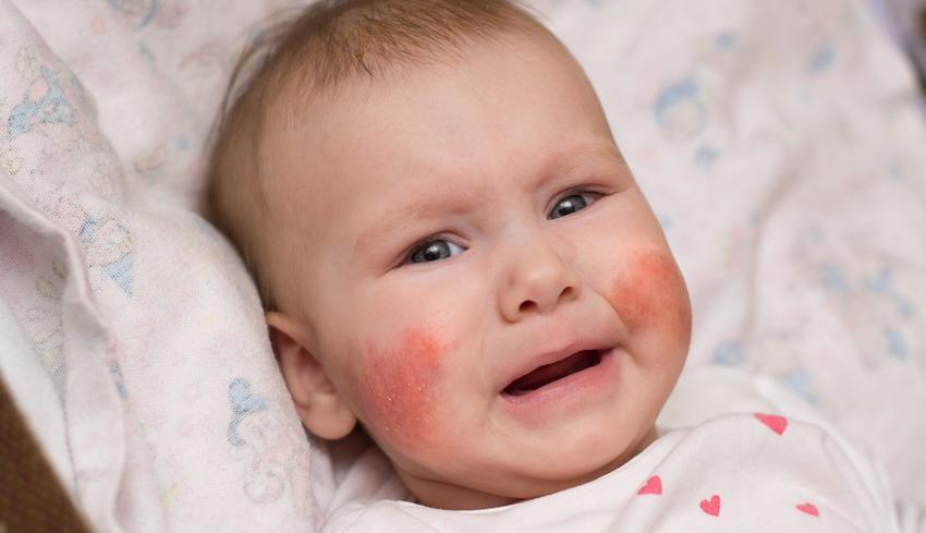 mandulák és vörös foltok az arcon
