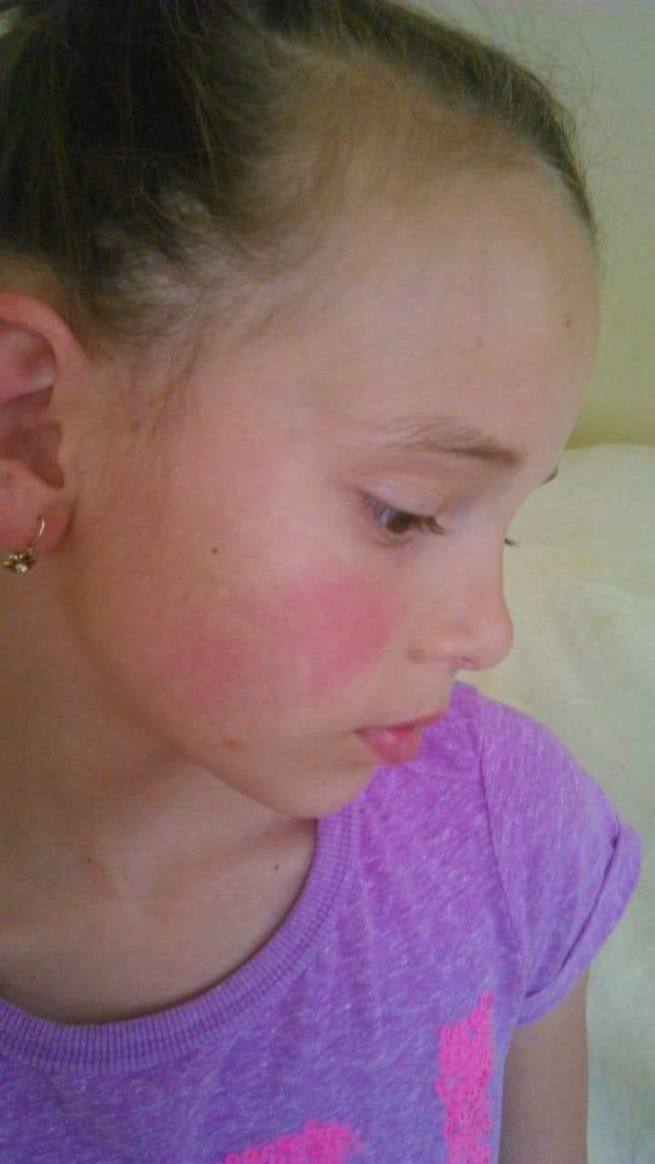 foltok az arcon vörös duzzadtak)