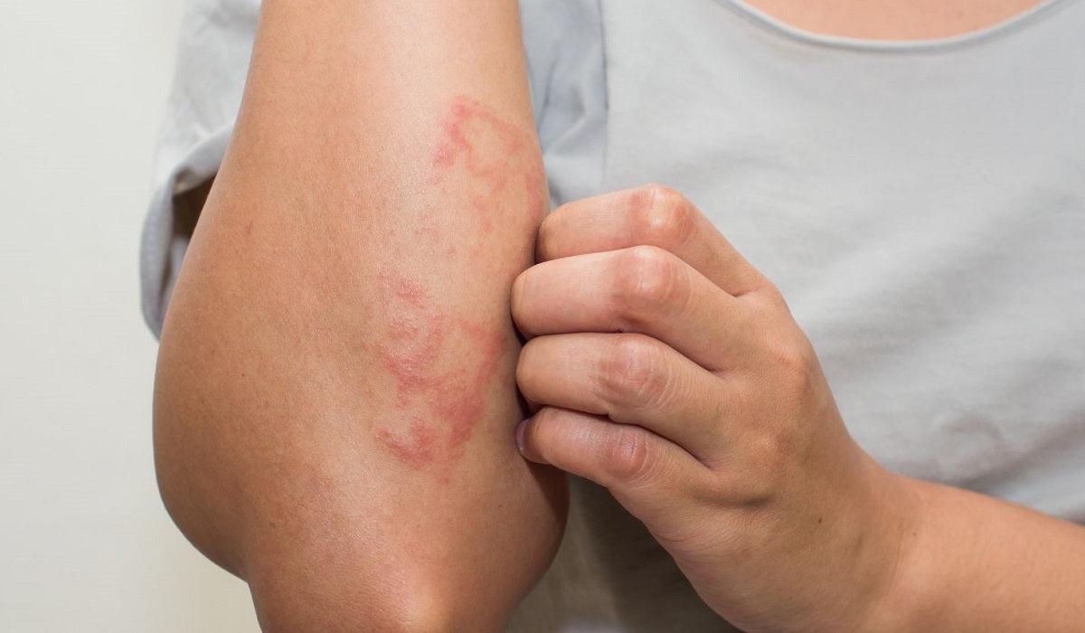 kenőcsök dermatitis és pikkelysömör ellen pikkelysömör kezelése gyógyszerekkel