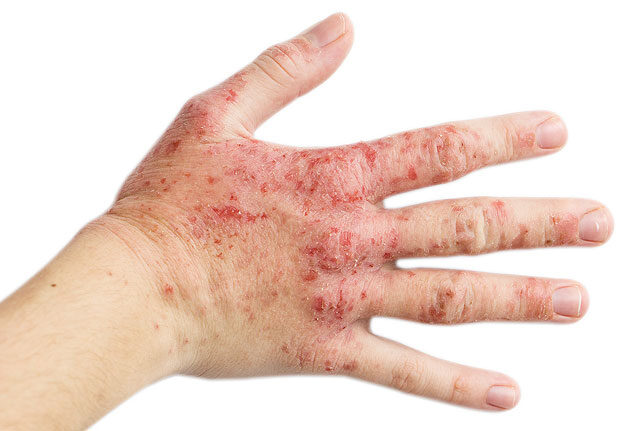 vörös száraz foltok a kezeken és a lábakon a szájnyálkahártya pikkelysömörének kezelése
