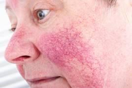 irritáció az arcon vörös foltok formájában krém)