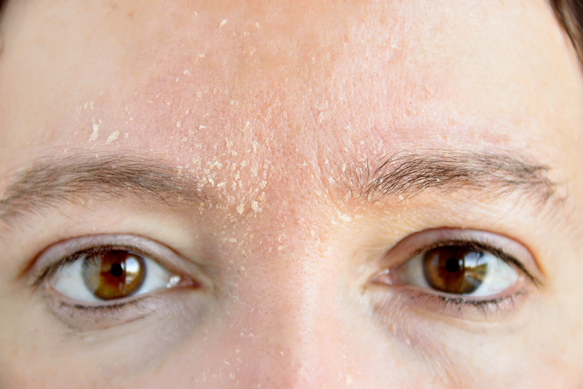 száraz bőr az arcon és pelyhek vörös foltokkal)