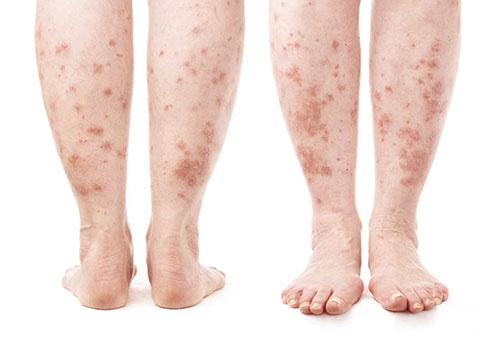 vörös folt a lábán nem árt növekszik