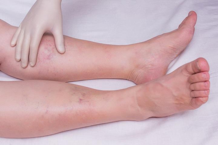 bőrviszketés és vörös foltok jelennek meg Veselka gomba a pikkelysmr kezelsben