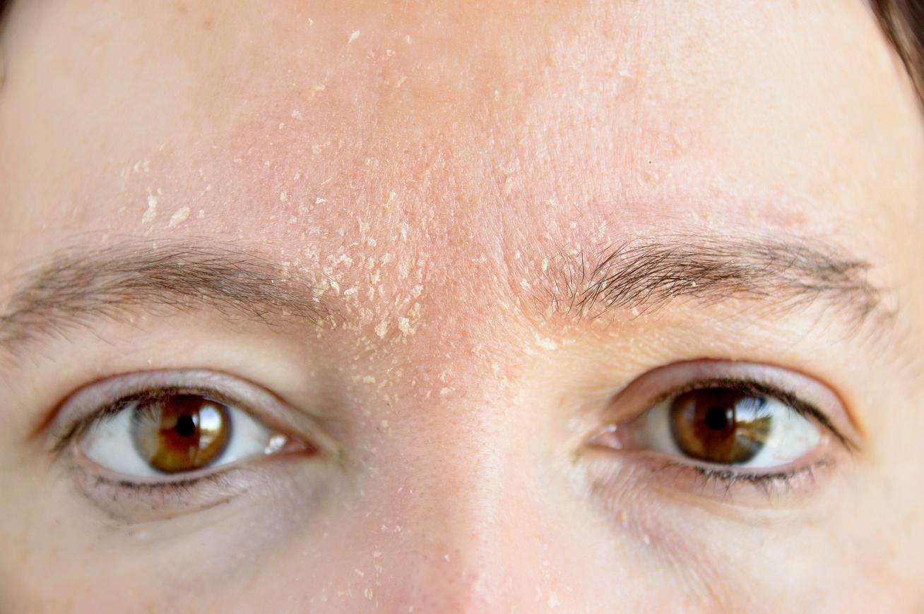 hogyan lehet gyorsan megszabadulni a pikkelysömörtől az arcon