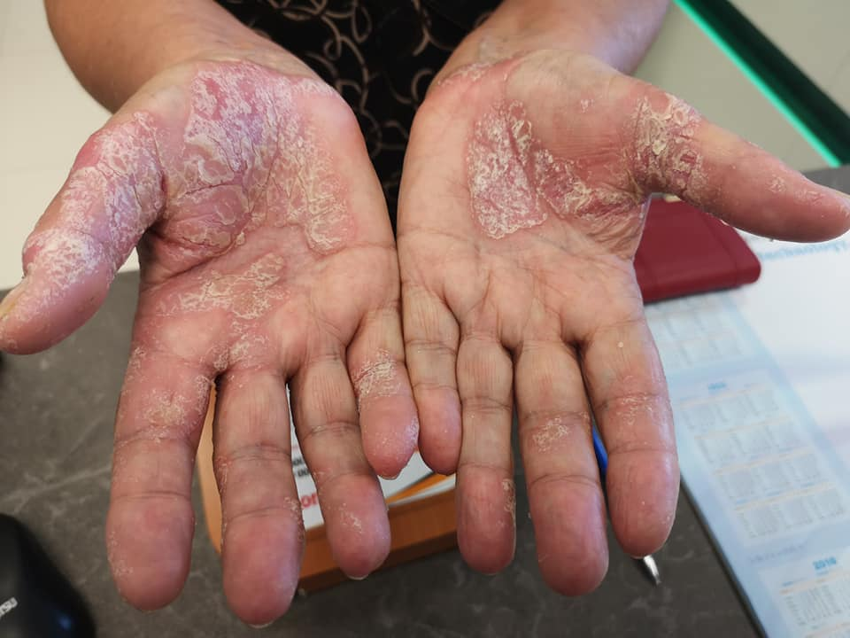 száraz vörös foltok az ujjakon)