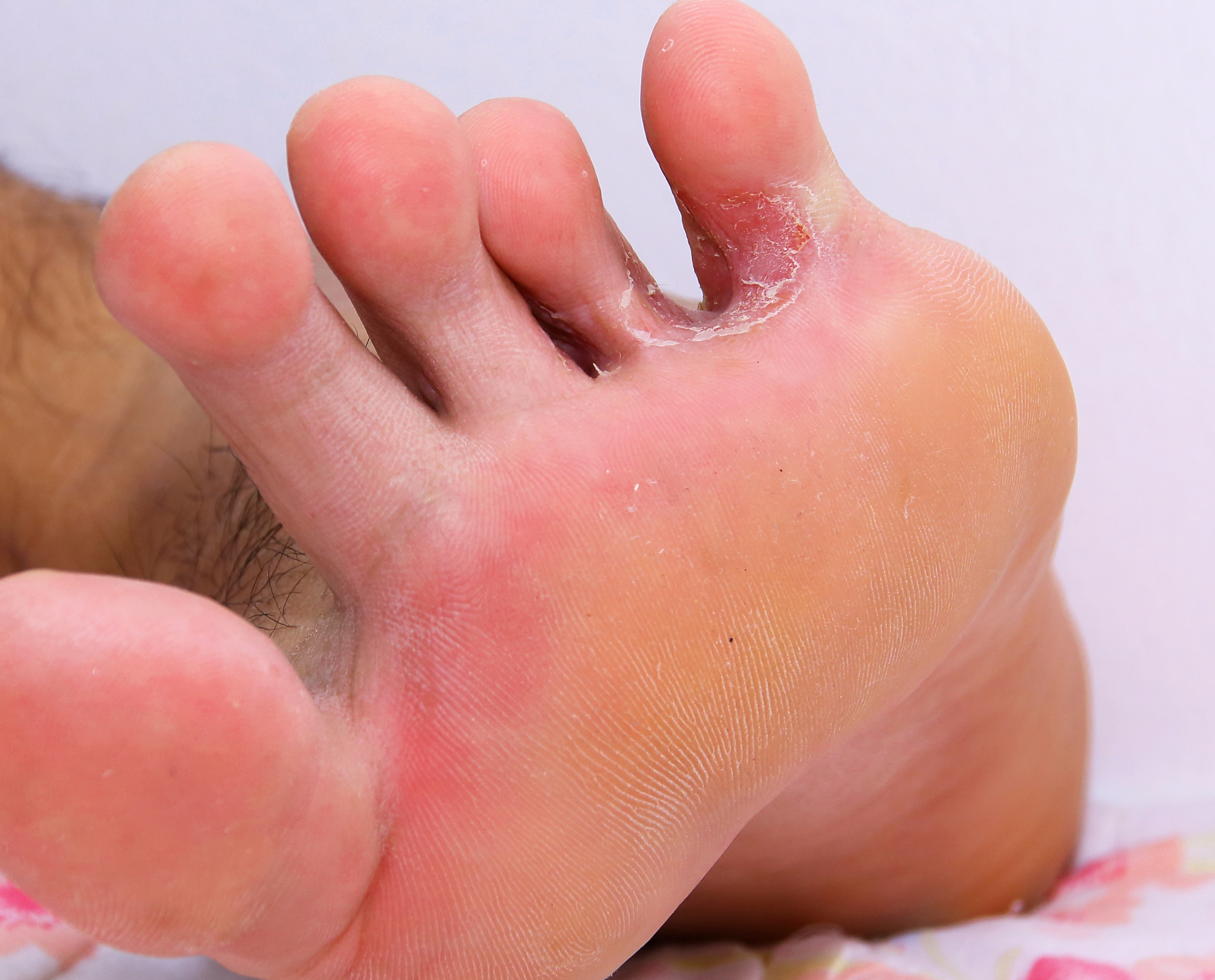 hogyan lehet megszabadulni a lábán lévő vörös foltoktól otthon