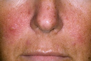pikkelysömör az arcon népi gyógymódok