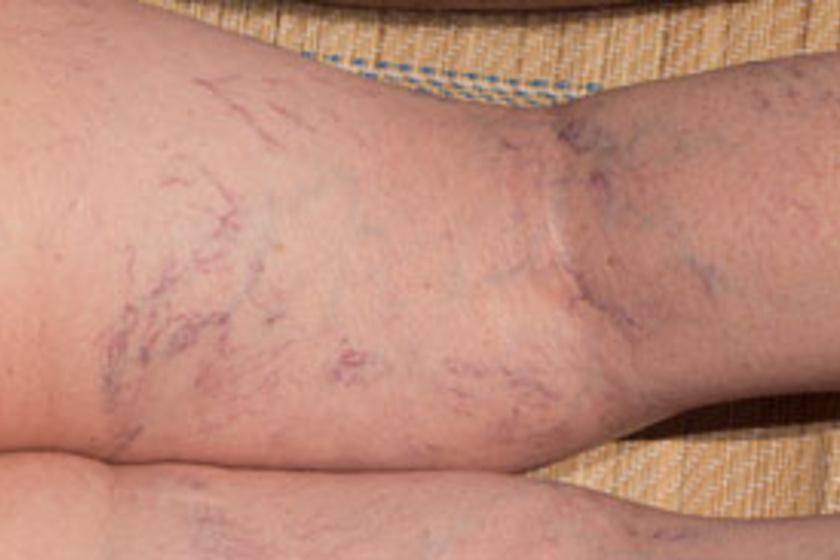 erek robbantak a lábakon vörös foltok