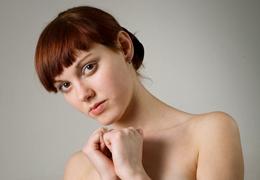 fejbőr pikkelysömör hogyan kezeljük a véleményeket biotin a pikkelysmr kezelsben