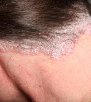a kezelés kezdeti szakaszának fej fotója pikkelysömör)