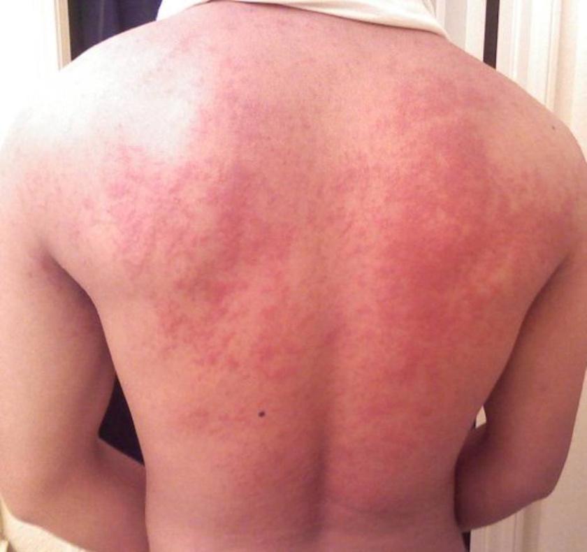 vörös foltok jelennek meg a testen, viszketnek és fokozódnak)