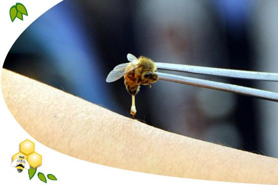 A méhcsípés gyógyító hatása - koronakredit.hu - Egészség és Életmódmagazin