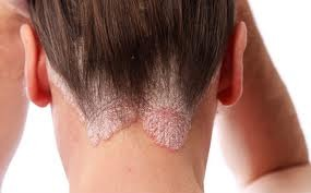 poszt pikkelysömör kezelése népi gyógymódok pikkelysömörre a testen felülvizsgálatok
